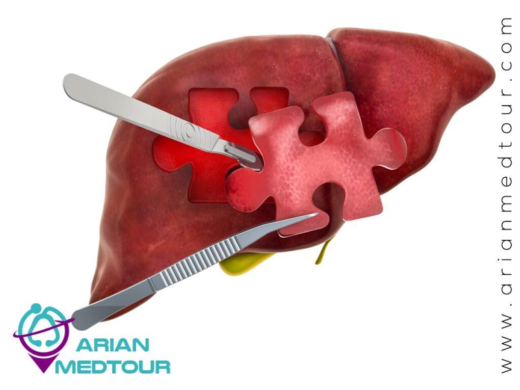 History of liver transplantation in Iran